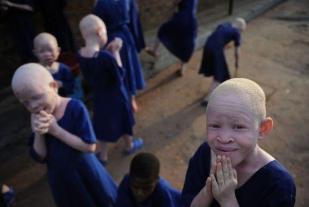 albinos_01