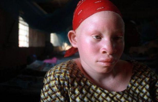 albinos_02